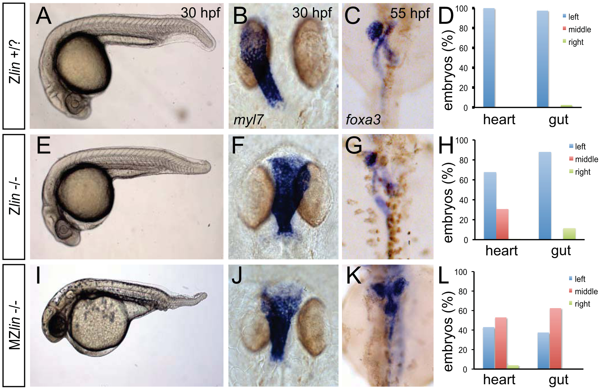 Dorsoventral and laterality defects in zygotic and maternal zygotic <i>lin</i> mutant embryos.