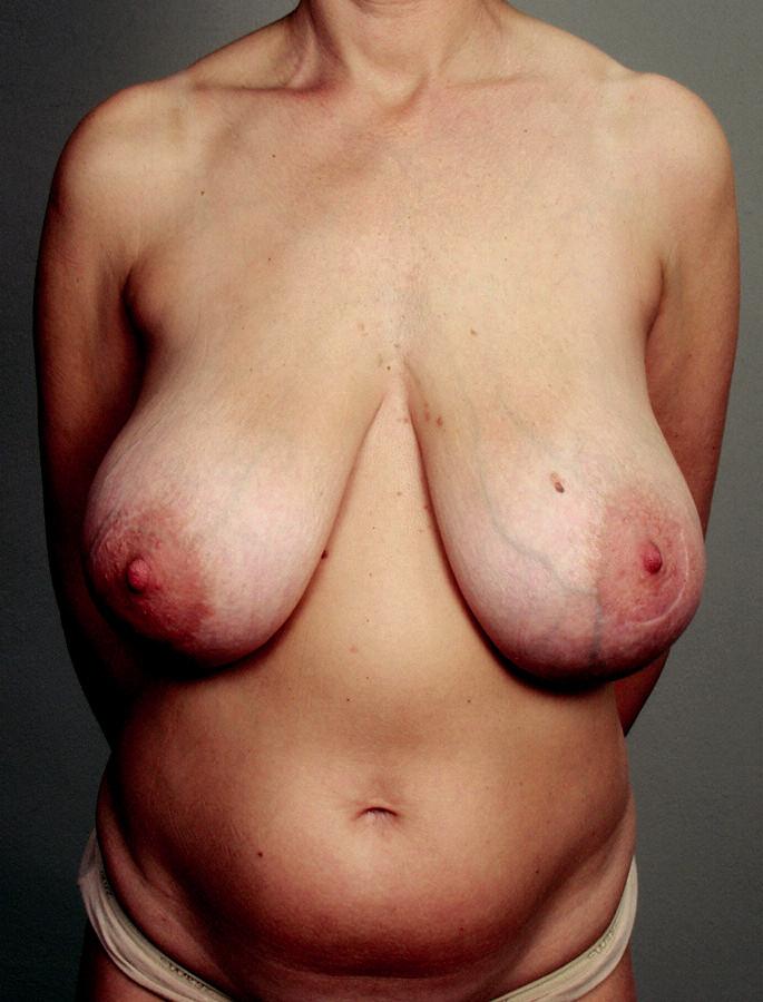 Obr. 6a. Pacientka – nosička genu BRCA –  oceňující nejen řešení onkologické situace provedením oboustranné profylaktické prosté mastektomie...,