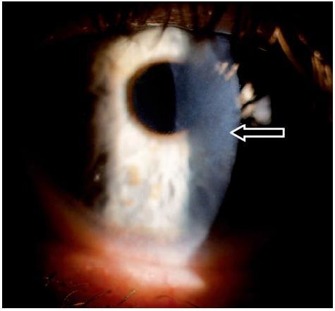 Subepiteliální fibróza – levé oko