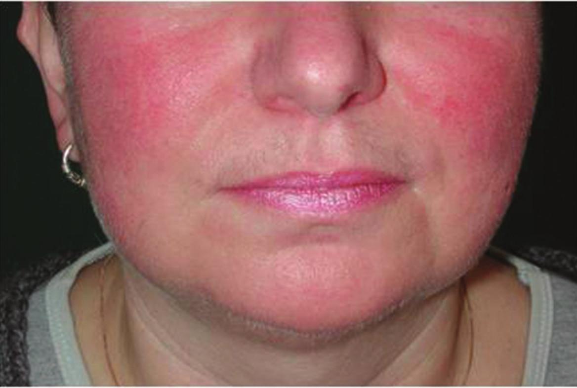 Airborne iritační kontaktní dermatitida po persterilu