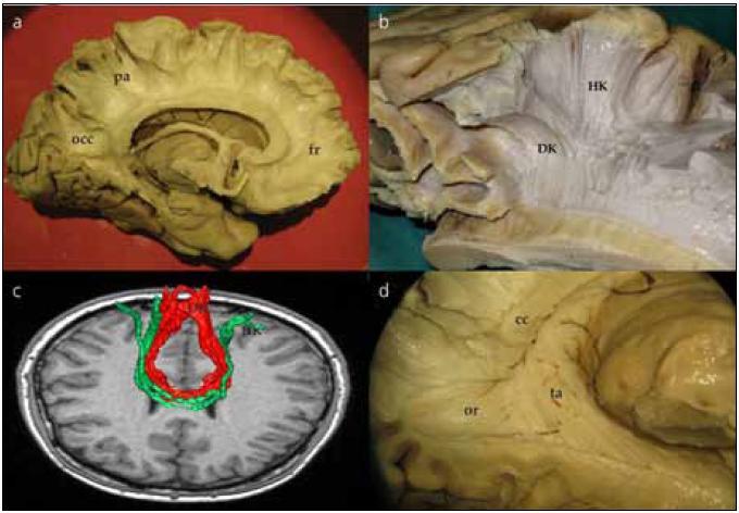 Preparace corpus callosum. Obr. 2a) Komisurální vlákna corpus callosum jdoucí z frontálního (fr), parietálního (pa) a okcipitálního (occ) laloku. Obr. 2b) Komisurální vlákna jdoucí z centrální krajiny pro horní (HK) a dolní (DK) končetinu – motorické corpus callosum. Obr. 2c) Traktografické zobrazení komisurálních vláken pro dolní končetinu (DK) červená vlákna a horní končetinu (HK) zelená vlákna. Průběh virtuálních vláken zobrazených technikou DTI koreluje s průběhem vypreparovaných komisurálních vláken (B). Obr. 2d) Tapetum (ta) ve vztahu k optické radiaci (or). cc – corpus callosum