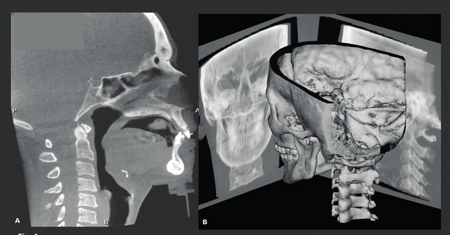 Rozšířené pole zobrazení (FOV) CBCT získané pomocí techniky dvojí rotace, která zahrnuje všechny potřebné struktury od hrtanu po čelo. Fúze snímků rozšířeného FOV CBCT, jeden z 360 (bočních) snímků použitých pro rekonstrukci 3D CBCT snímků (A). 3D CBCT snímky poskytují přesnější možnosti měření než konvenční RTG projekce hlavy. Jak 3D CBCT snímky, tak 2D projekce (snímky hlavy) vytvořené z těchto 3D CBCT snímků, lze vytvořit z CBCT datových souborů (B).