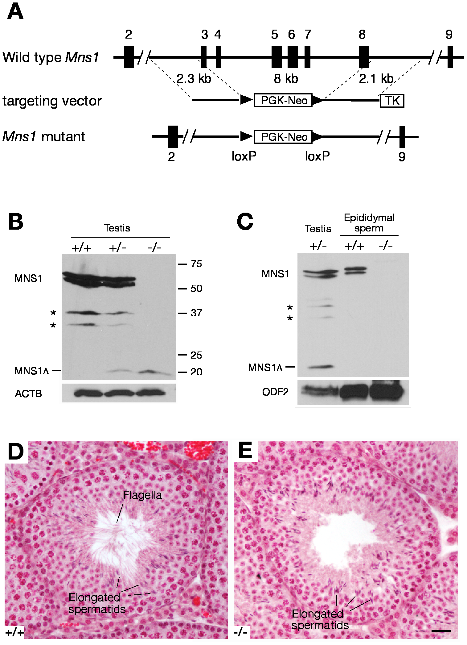 <i>Mns1</i> is required for spermiogenesis.