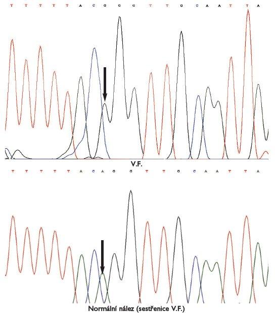 Analýza genomové DNA V.F. Sekvence 3' konce intronu 1 a 5' konce exonu 2. Mutace akceptorového sestřihového místa IVS1-2a>g.