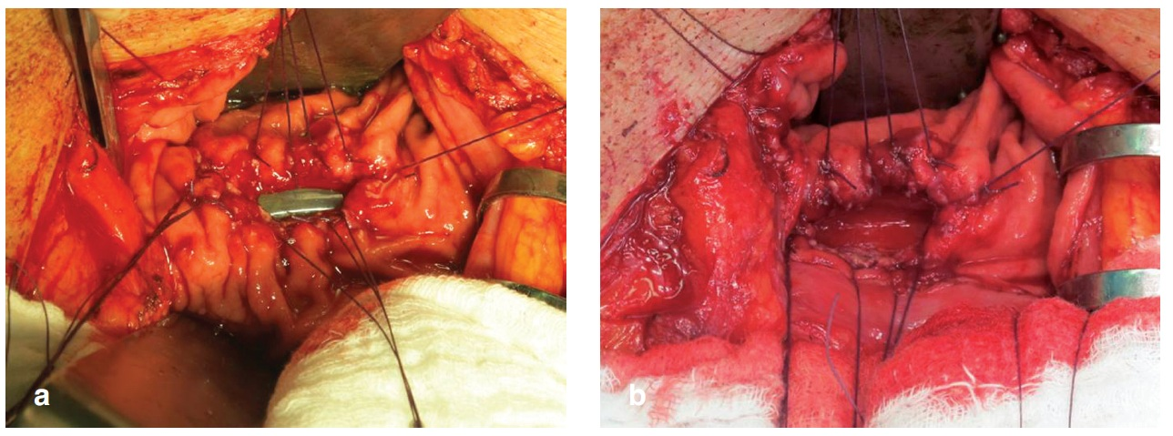 Kazuistika 1 – a) zadní gastrotomie nad zavedeným drénem, b) po vytažení drénu Fig. 4: Case 1 – a) posterior gastrotomy over the drainage tube, b) drainage tube extraction
