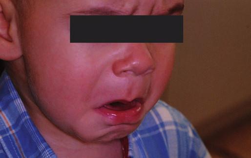 Dítě před podáním analgosedace. Fig. 2. The child befor interpretation the analgosedation.