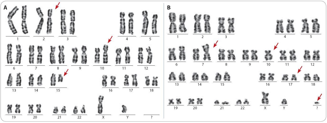 Ukázka karyotypu dvou pacientů s komplexními změnami. Červenými šipkami jsou označeny aberantní chromozomy.