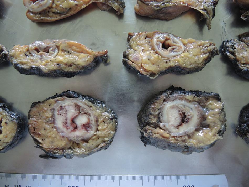 Transverzální řezy resekátu Fig. 5. Cross sections of resected specimen