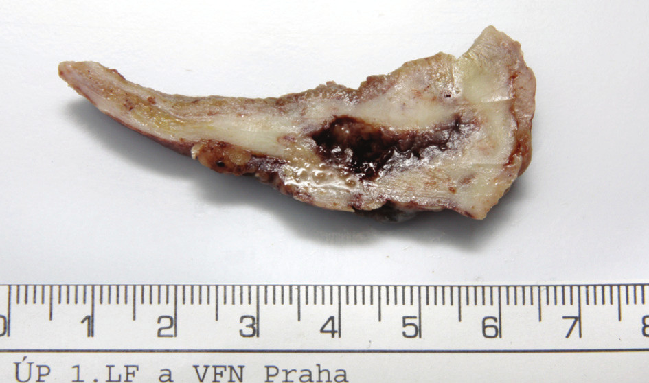 Fotografie – průřez stěnou žlučníku s nálezem ve fundu