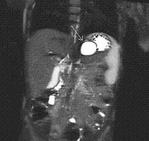 MRI – frontální řez, cysta označena šipkou Fig. 2: MRI – frontal view, the cyst is marked with an arrow