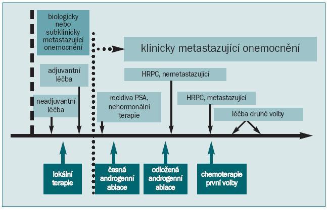 Schéma 3. Průběh metastazujícího onemocnění u pacienta podstupujícího léčbu karcinomu prostaty. Všimněme si, že metastáza se vyskytuje (subklinicky) mnohem dříve, než je detekována klinicky, obvykle na základě zvýšení PSA v séru. Druh léčby závisí na fázi průběhu onemocnění. Otištěno se svolením (Nature Reviews Cancer 1, 34-45 (2001) (147).