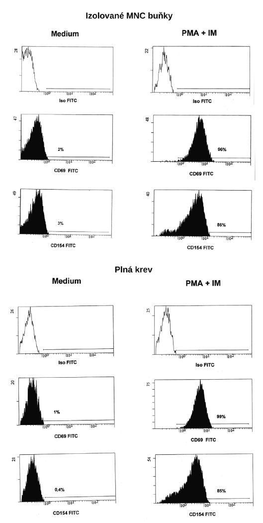 Vyšetření exprese CD154 na CD5+CD8- lymfocytech 3a) izolované buňky; 3b) plná krev Fig. 3. Detection of CD154 expression on CD5+CD8- T cells 3a) Isolated cells ; 3b) Whole blood