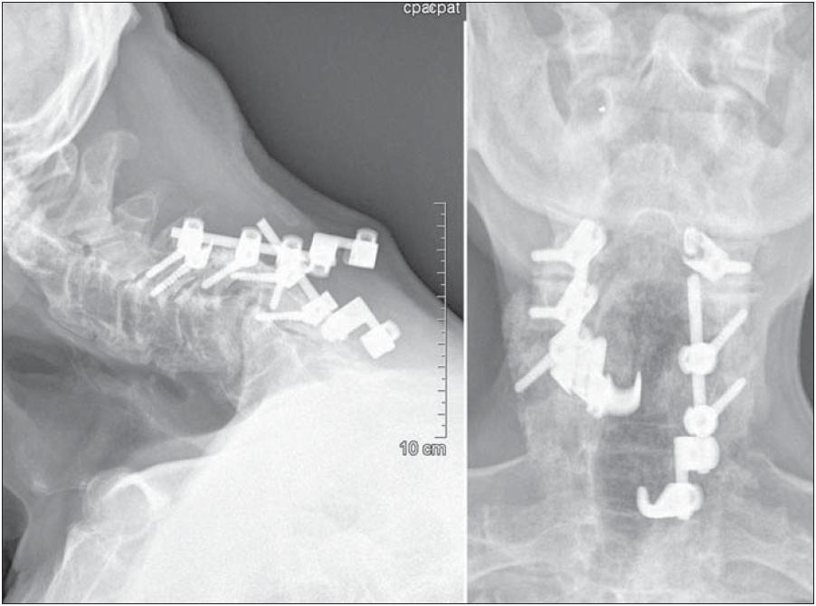 Primárně zvolená zadní fixace s odstupem čtyř týdnů po operaci selhává. Dochází k dislokaci implantátů a vrací se původní stupeň kyfotického postavení krční páteře.