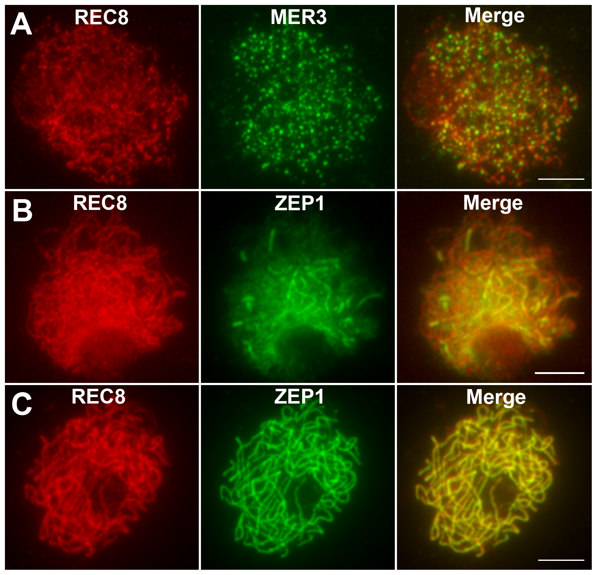 Immunolocalization of REC8, MER3, and ZEP1 in <i>hei10-1</i>.