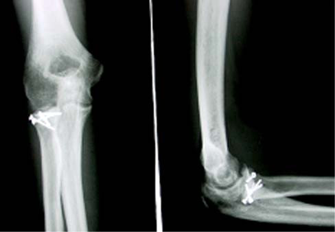 Zlomenina typu Mason II po osteosyntéze miniskrutkami.