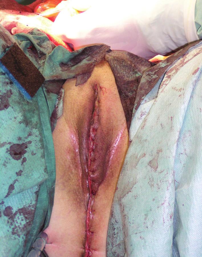 Operační nález: stav po dokončení TPE s vulvektomií, sutura defektu na hrázi Fig. 6: Surgical finding: status after finishing the TPE with vulvectomy, suture of the perineal wound