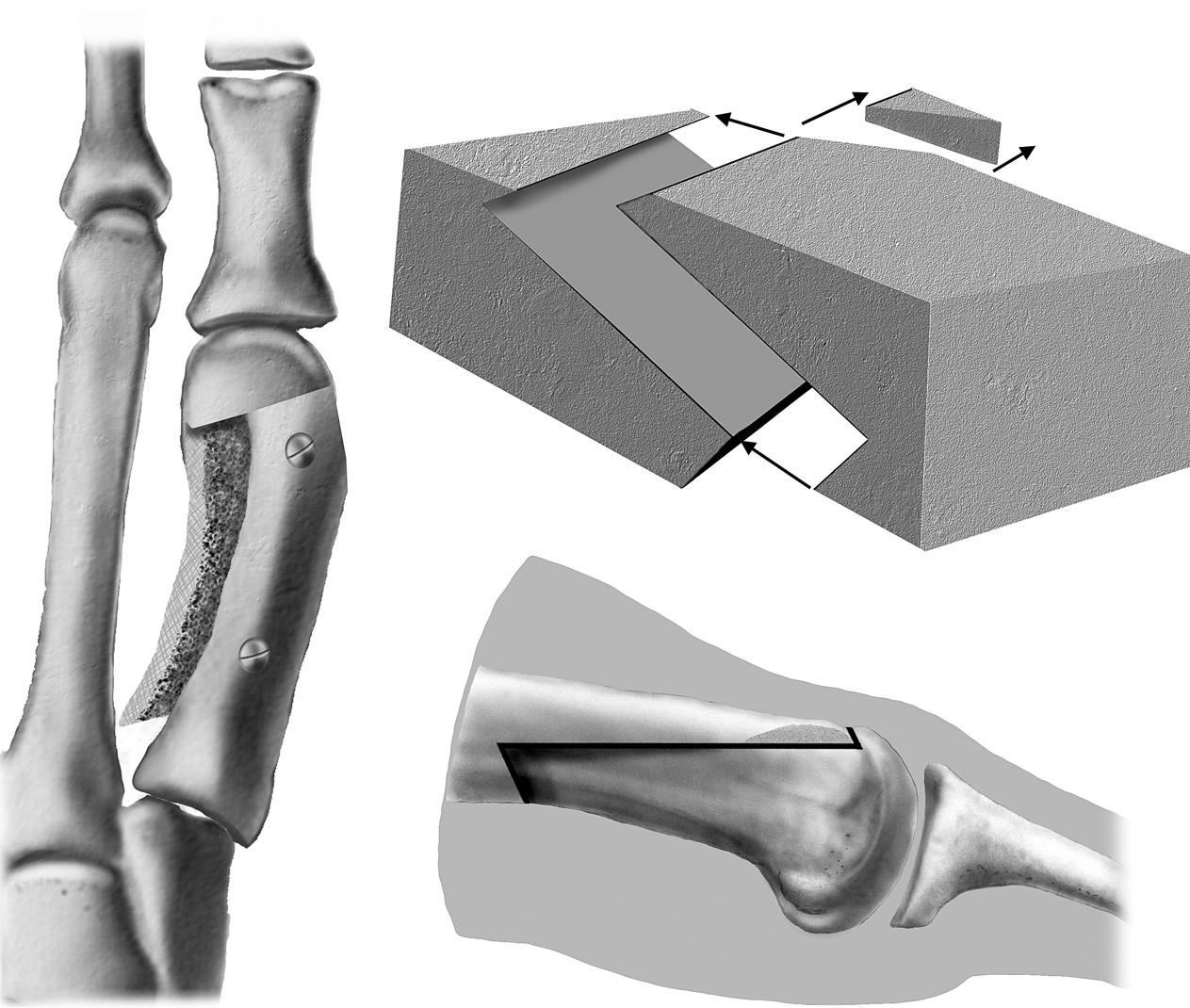 Schéma scarf osteotomie diafýzy I. MTT.