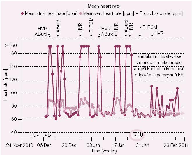 Obr. 2b. Změnou farmakoterapie se daří i lepší kontrola komorové frekvence při paroxyzmech FS (znázorněna modrými kosočtverci jako každodenní průměr).