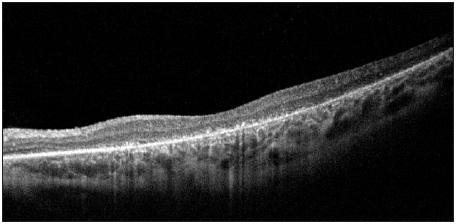 OCT nález u pacienta s pigmentovou dystrofiou s viditeľnou atrofiou vonkajších vrstiev sietnice