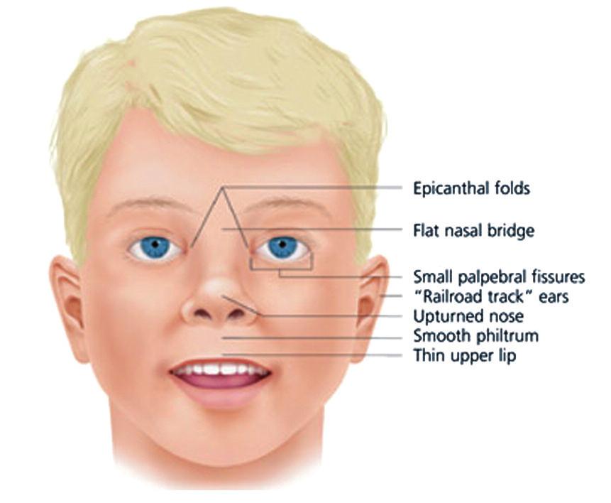 Obličej dítěte s FAS. Krátké oční štěrbiny, epicanthus, krátký, sedlovitý nos s antevertovanými nozdrami, dlouhé, ploché philtrum a tenký horní ret. Plochý střed obličeje. (Převzato z Wattendorf DJ, Muenke M, 2005) Fig. 1. Face of the children with FAS. Short palpebral fissures are combined with anteverted nostrils, long flat philtrum and narrow upper lip. Flat middle of the face. (Adopted fromWattendorf DJ, Muenke M, 2005)