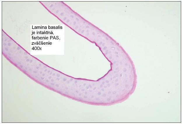 Obr. 3. Epiteliálny flap vytvorený iba mechanicky, lamina basalis je prítomná