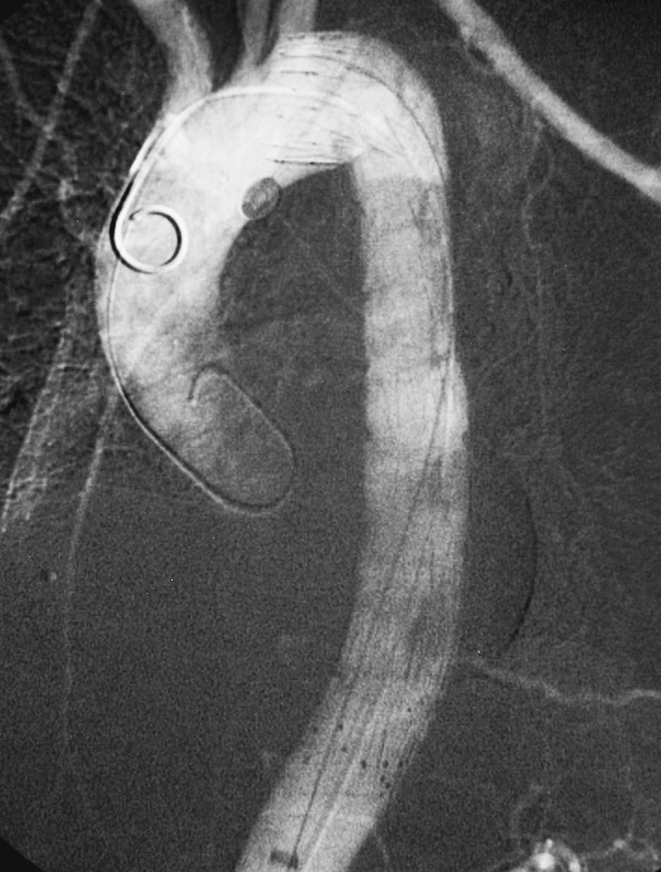 Stav po úspěšném zavedení hrudního stentgraftu Pic. 7. Thoracic stentgraft, successfully introduced