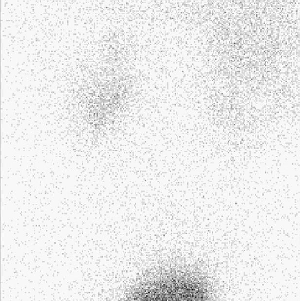 Kontrolní scintigram po skončení studie, bez retencí aktivity v dutém systému. Fig. 6. A control scintigraphy after the end of the study, without retention of activity in the hollow system.