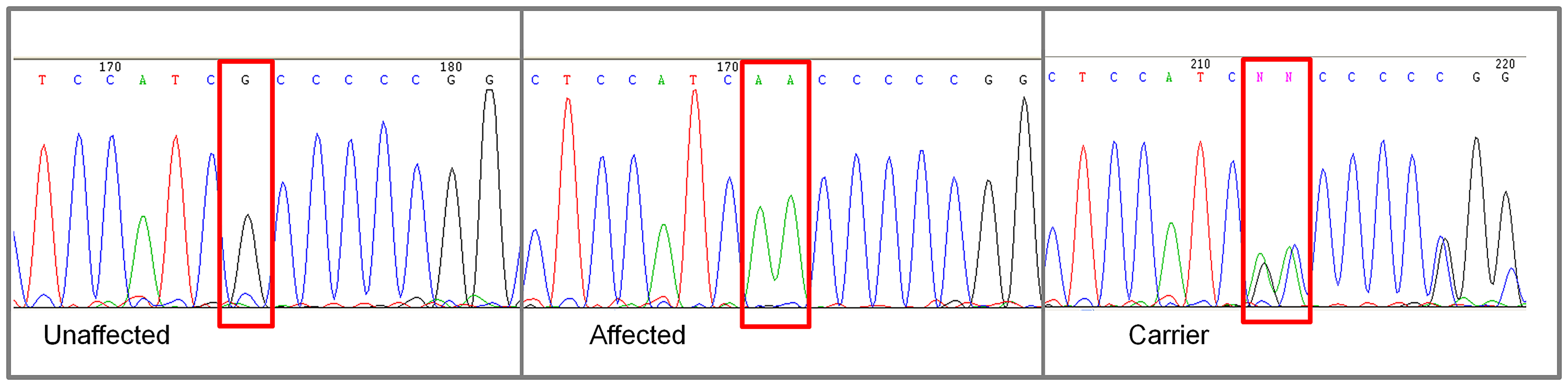 Chromatograms of <i>NKX2-8</i> exon 2 sequence where a mutation of G to AA was found in an affected Weimaraner.