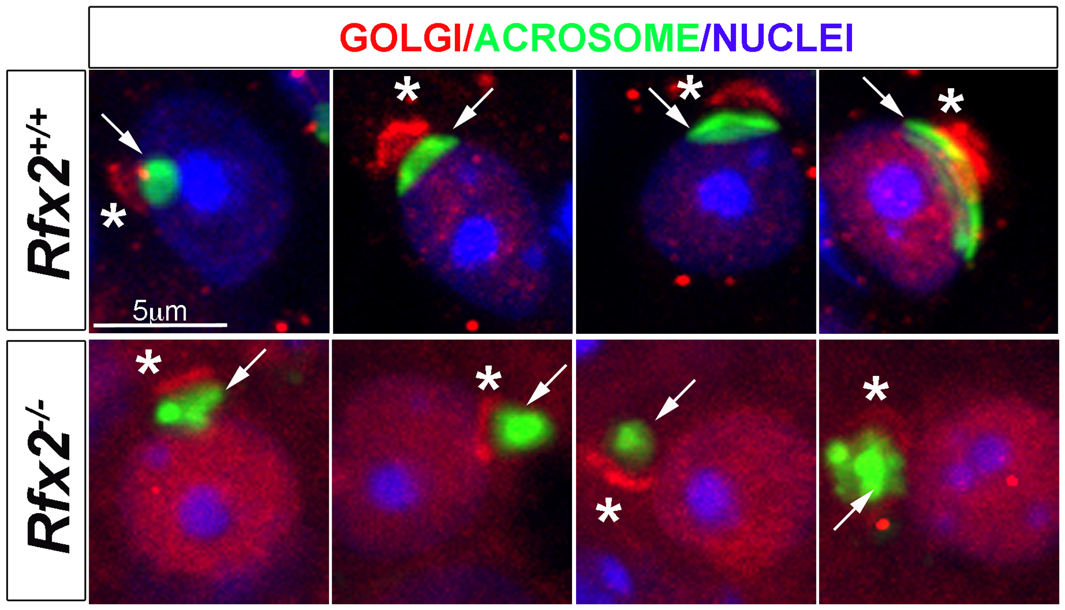 Testis sections from P30 <i>Rfx2</i><sup>+/+</sup> or <i>Rfx2</i><sup><i>-/-</i></sup> mice stained for the cis-Golgi compartment (GM130 antibody, red), the acrosome (peanut agglutinin, green) or nuclei (Dapi, blue).