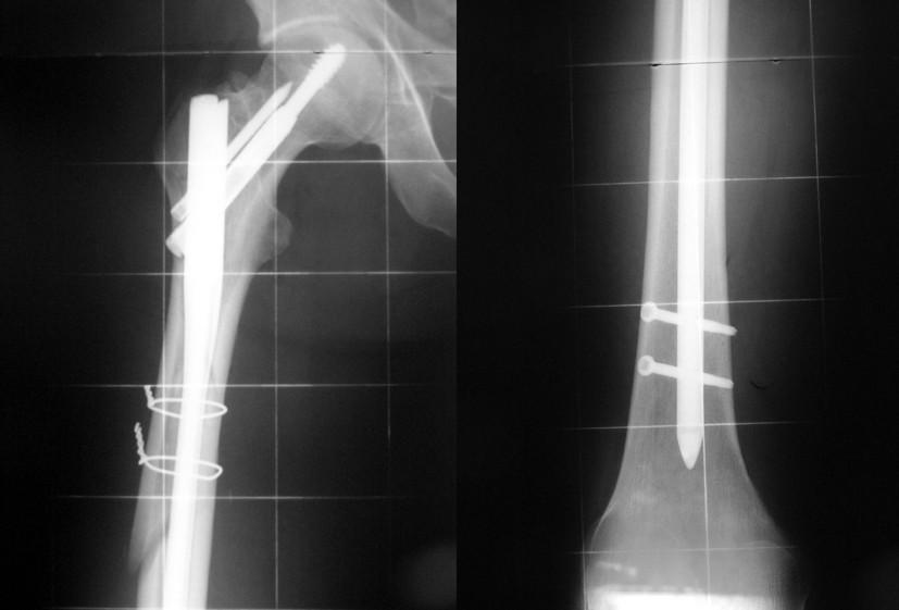 Obr. 3b: Subtrochantericko – diafyzární zlomenina po ošetření hřebem Targon PF long