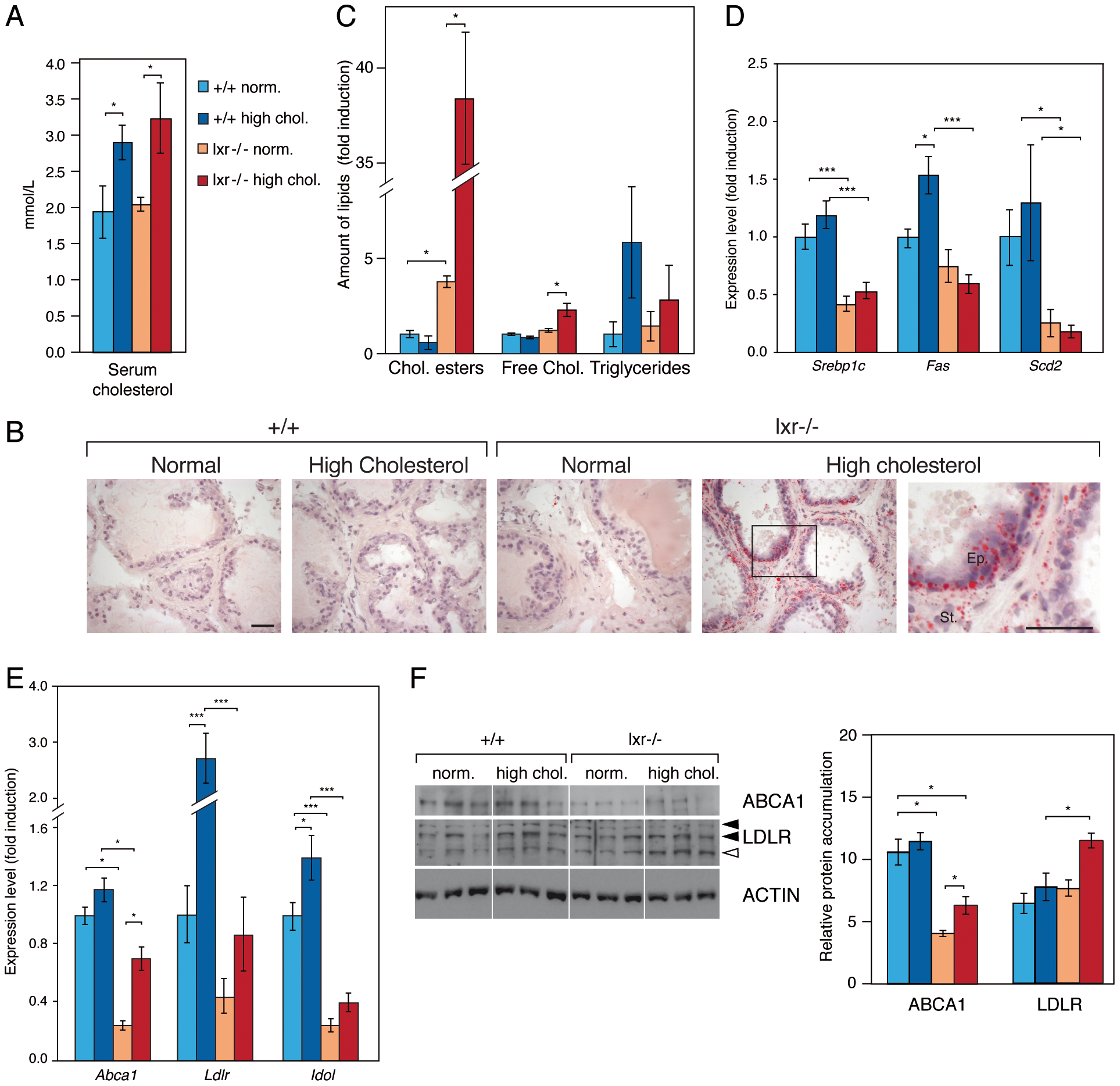 Prostates of LXR mutant mice accumulate cholesterol esters through inappropriate LXR target genes regulation.