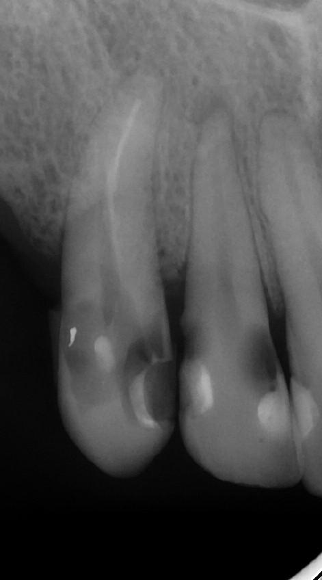 Obr. 3a. Reendodoncie zubu 13.