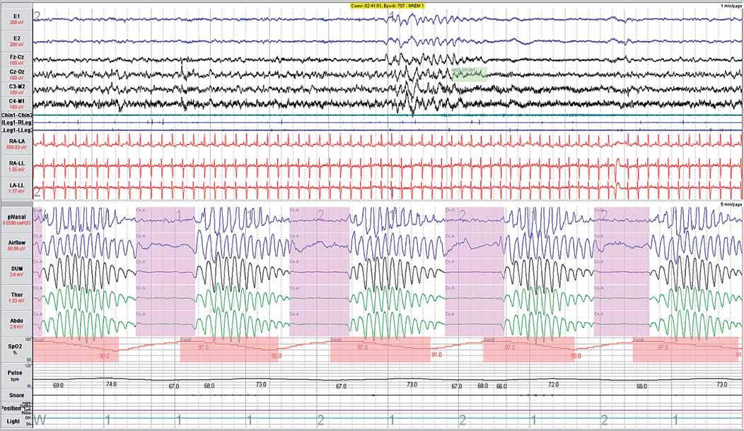 Příklad centrální spánkové apnoe kombinované s výskytem periodického Cheyne-Stokesova dýchání. Na záznamu jsou dobře viditelné epizody úplné zástavy dechových pohybů (centrální spánková apnoe), jenž jsou následované cyklem periodického crescendo-decrescendo Cheyne-Stokesova dýchání. Jde o typický nález SDB, který se vyskytuje u pacientů s pokročilou formou srdečního selhání. Definice jednotlivých snímaných signálů je uvedena v části: Hodnocení polysomnografického záznamu.