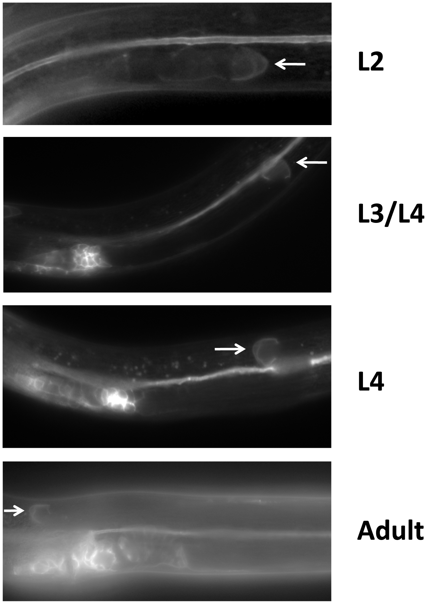 LIN-17 is expressed in the hermaphrodite DTCs throughout development.