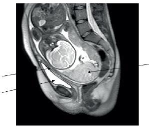 Snímek z vyšetření NMR, šipkami je označeno směrem zleva doprava vytažené děložní hrdlo, vytažený kraniální pól močového měchýře, placenta inzerující v děložním fundu