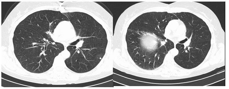 CT vyšetření hrudníku před léčbou nivolumabem a po 10 měsících léčby, regrese některých plicních metastáz