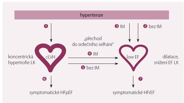 Možné cesty vývoje hypertenze k srdečnímu selhání.