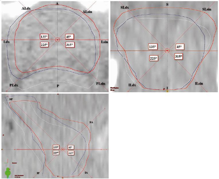 Hodnocení prostorových odchylek mezi jednotlivými objemy CTV: a) rovina transverzální, b) rovina koronární, c) rovina sagitální.