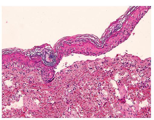 """Tvorba subepidermálnej buly. Vľavo je prítomný """"eraser effect"""" a evidentný začiatok tvorby buly intraepidermálne (""""intrakeratinocytárne""""). V dermis je prítomný minimálny zápalový infiltrát (hematoxylín-eozín, zväčšenie 200x)."""