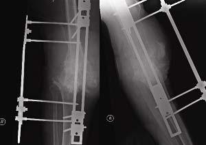 Po artrodéze