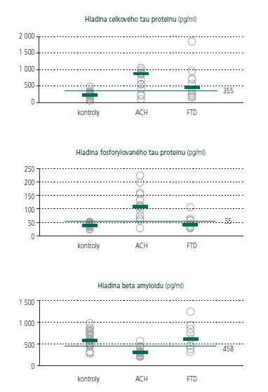 Graf 1–3. Znázornění naměřené hodnoty biomarkerů v likvoru u skupin norem, ACH a FTD. Krátkou úsečkou je vyznačen medián hodnot, dlouhou úsečkou pak cut off hodnota, při které je dosaženo nejlepší specificity a senzitivity pro odlišení ACH od kontrolní populace.
