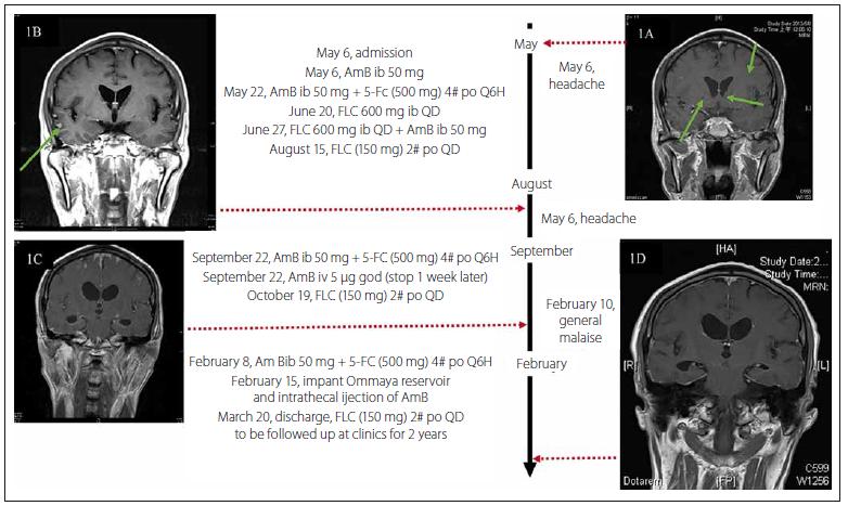 Fig. 1. Timeline of <i>C. gattii</i> AFLP4/VGI infection, the serial brain magnetic resonance imaging.