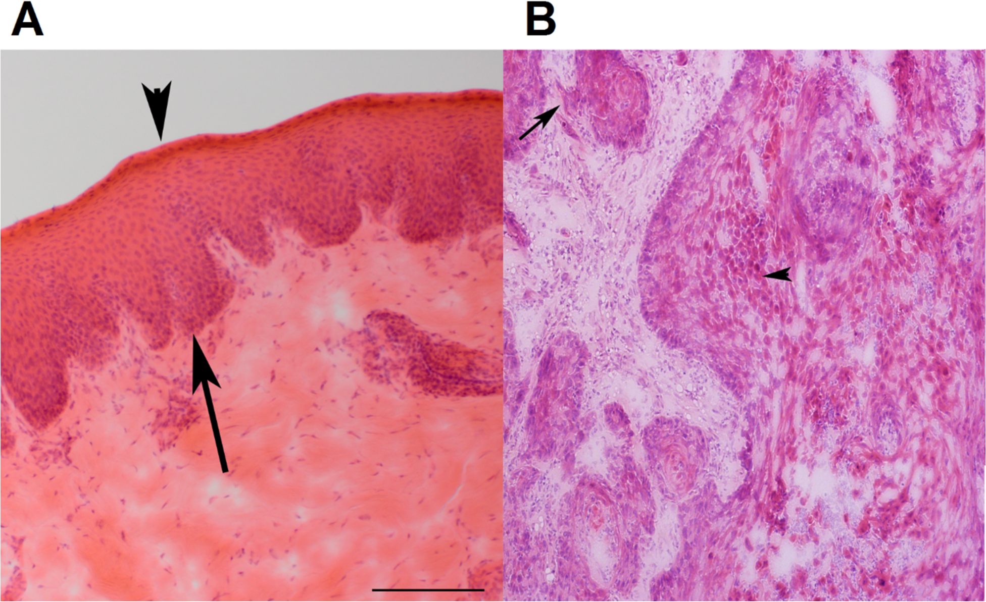 Representative H&E stained images of canine normal squamous epithelium and SCC of the oral cavity.