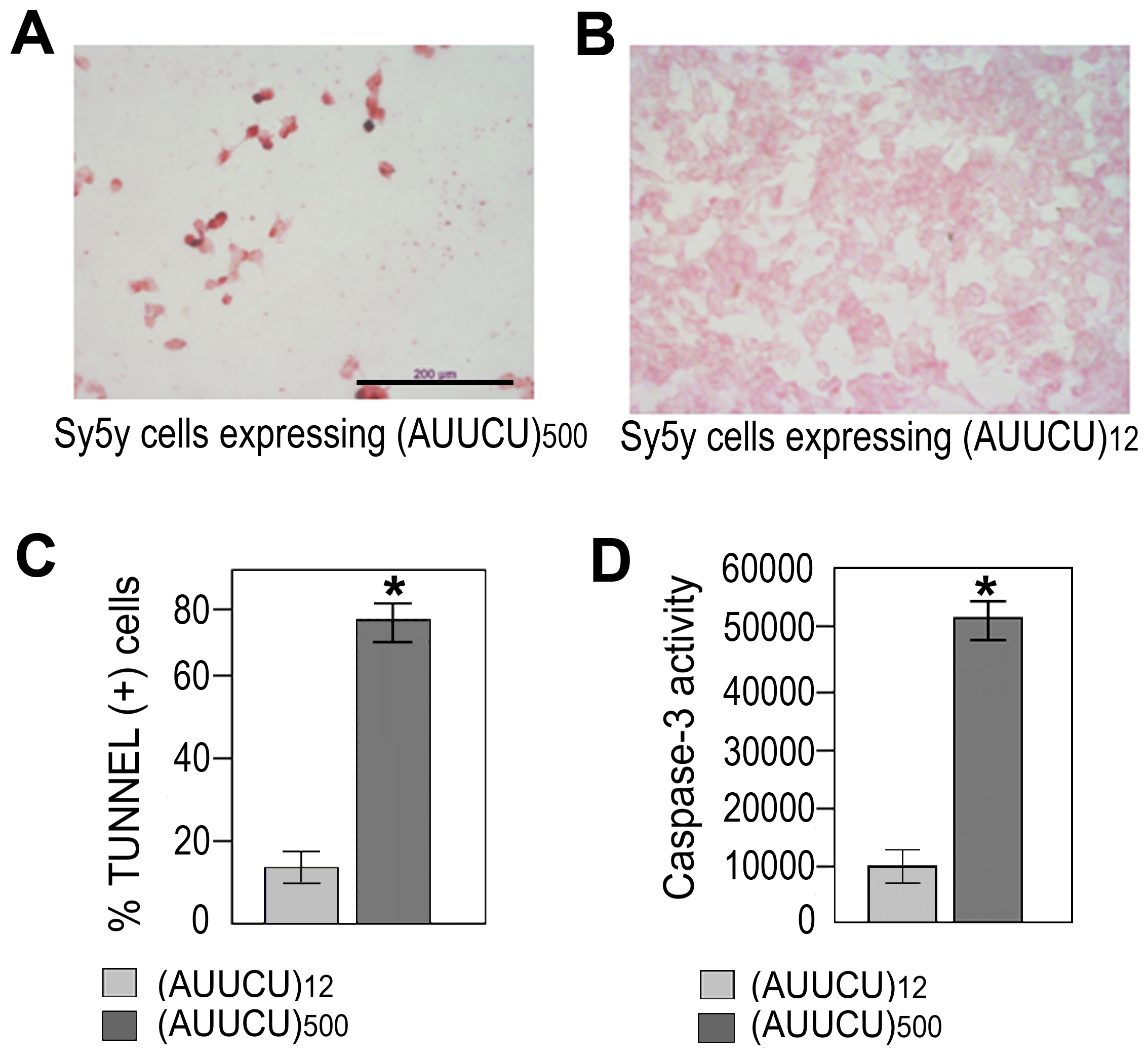 Expanded AUUCU repeat induces apoptosis.