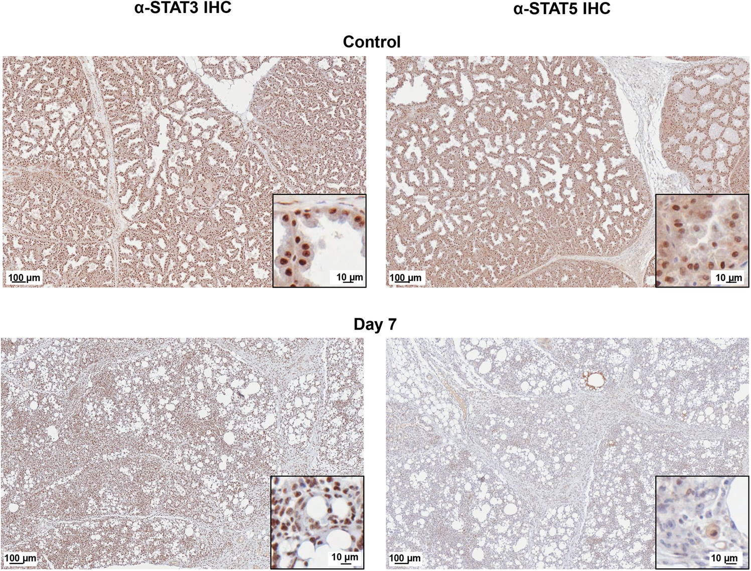 STAT5 protein is decreased and STAT3 protein is nuclear localized in H1N1+ Mammary Glands.