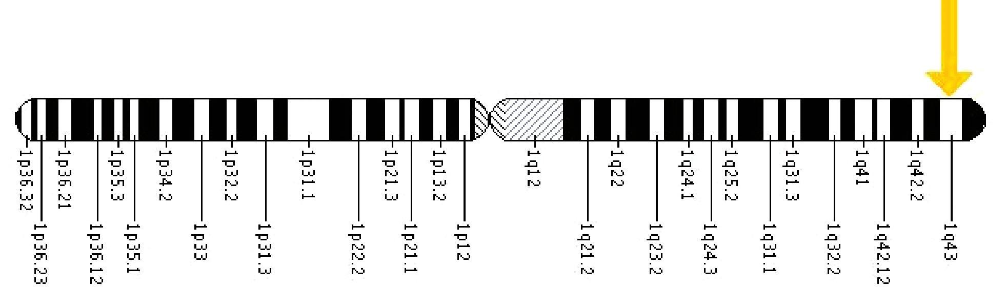 Umístění genu EDA na X chromozomu.