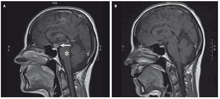 MR hypofýzy (T1 vážené sagitální skeny s kontrastní látkou). A – tumorózní expanze v oblasti infundibula lehce komprimující optické chiasma (šipka), v pontu postkontrastně se sytící okrsek odpovídající cévní malformaci typu kapilární teleangiektázie (hvězdička); B – stav po kompletním odstranění nádoru infundibula. Fig. 1. MRI of the pituitary gland (T1-weighted sagittal scans with contrast). A – tumor of the infundibulum compressing optic chiasm (arrow). Capillary teleangiectasia of the pons with contrast enhancement (asterisk); B – condition after complete removal of the tumor.