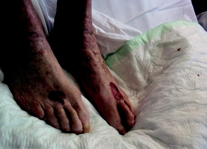 Hematomy na nártech (stav při přijetí)