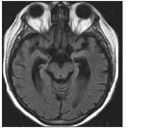 Pacientka 3 – na kontrolním MR mozku již rozvinutá atrofie limbického systému. Fig. 3. Patient 3 – atrophy of limbic structures on the MRI.
