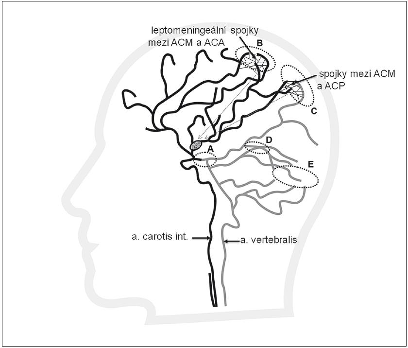 Výborně vytvořené leptomeningeální kolaterály mezi povodím ACM a ACA (B) a mezi ACP (šedá) a ACM (C), které přivádějí krev do leptomeningeálních kolaterál v pia mater (tenké černé linie). Kolaterály zajišťují retrográdní plnění (šipky) větví při trombu v ACM z povodí ACA a ACP. Plnění je patné na CTA jako retrográdní náplň k distální části trombu.